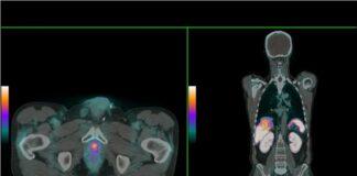 Premio nacional a un trabajo malagueño para la detección de cáncer de próstata