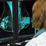 Nuevas terapias lograrán que 8 de cada 10 andaluzas con cáncer de mama lo superen